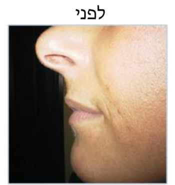 lips-b4